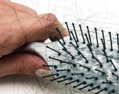 hair_loss01