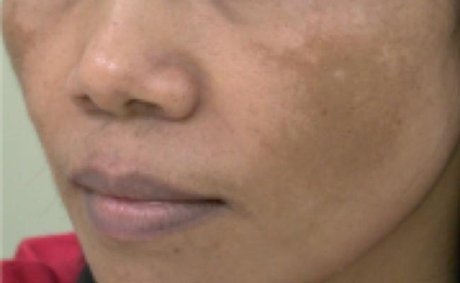 face_pigmentation_banner